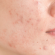 Natural Home Remedies To Remove Acne Scars