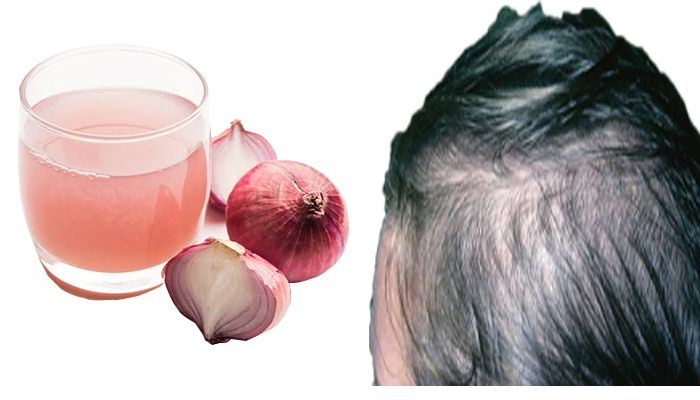 Onion for prevent hair loss